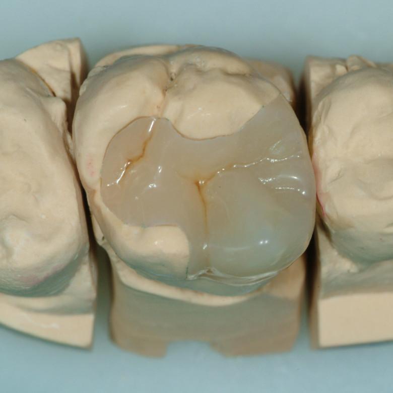 Conservativa dentaria bolzano
